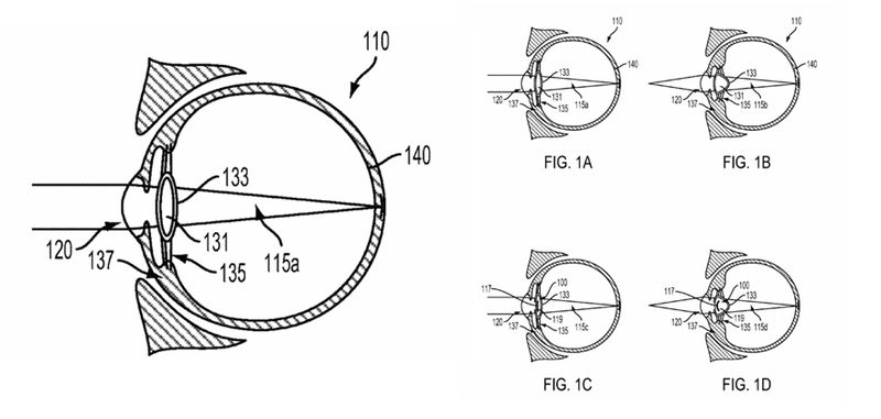 Google veut introduire android dans notre globe oculaire - Couche du globe oculaire ...